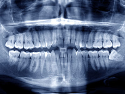 Image of a digital x-ray at Arrowhead Oral and Maxillofacial Surgery in Glendale, AZ