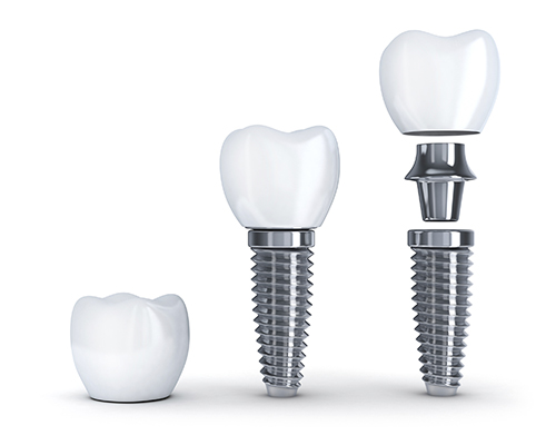 Dental Implant in pieces diagram used by Oral Surgeon in Glendale, AZ to educate patients.