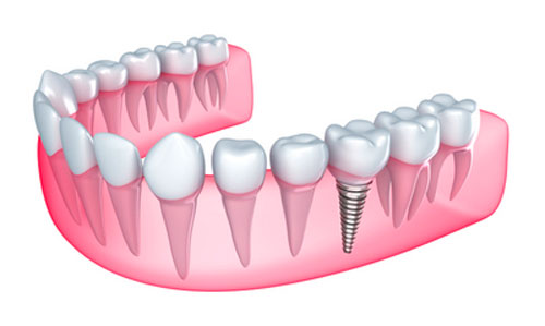 Graphic of a lower jaw with a dental implant in it used to educate patients of Glendale Oral Surgeon at Arrowhead Oral and Maxillofacial Surgery.
