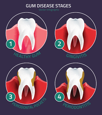 Diagram of the stages of gum disease from gingivitis to periodontitus