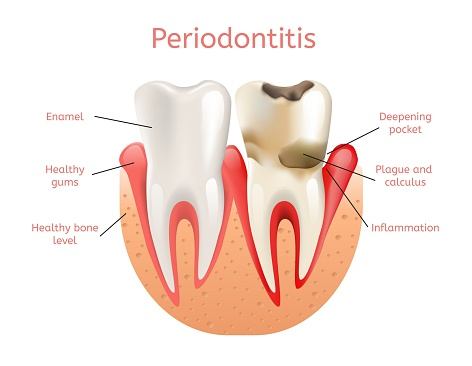 Diagram of a normal tooth and a tooth with periodontitis used by Glendale oral surgeon at Arrowhead Oral and Maxillofacial Surgery.