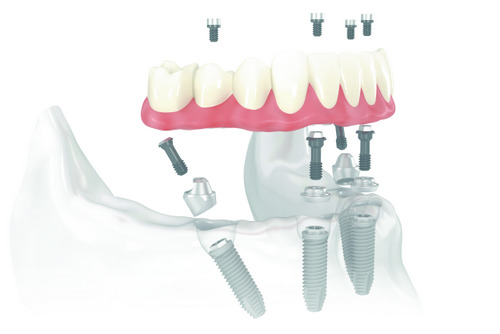 Benefits of Getting Implant Supported Dentures Placed
