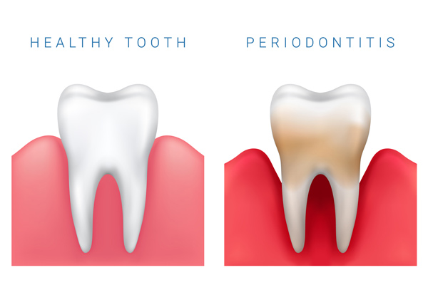 Diagram of healthy and periodontitis tooth.